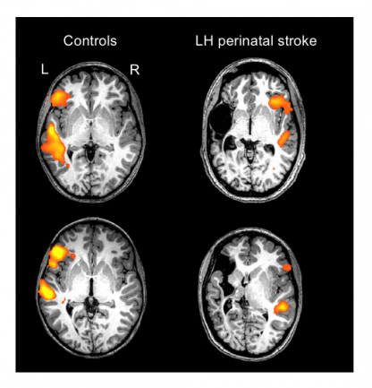 Individual scans of two healthy controls and two individuals with a left-hemisphere (LH) perinatal stroke.