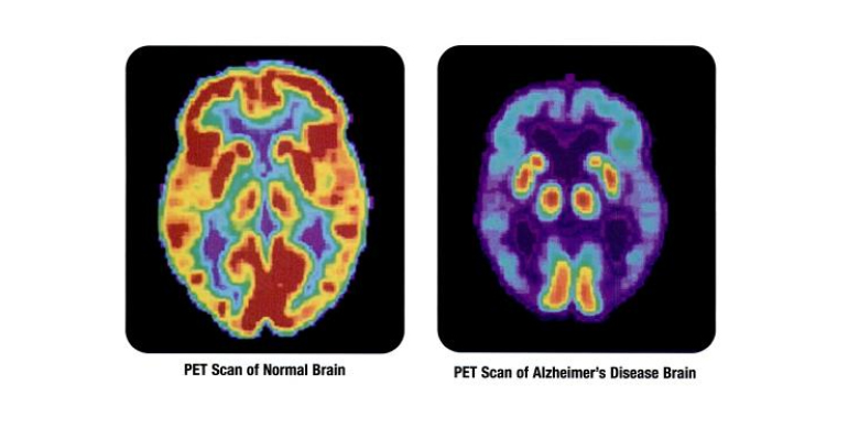 PET scan of brain