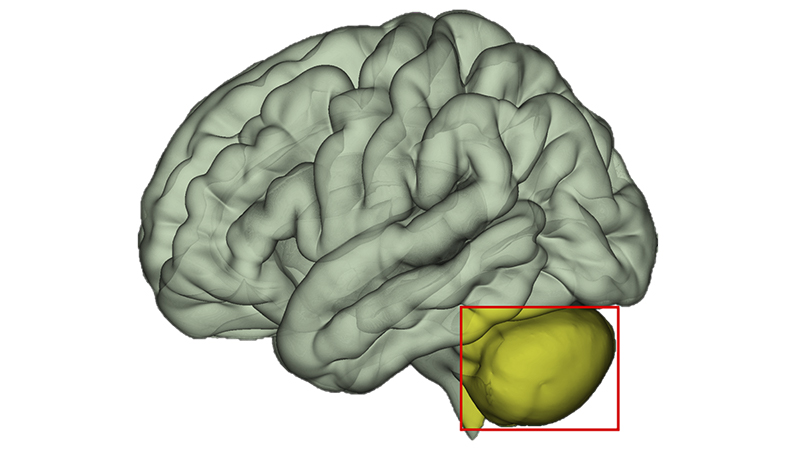 Computer illustration of brain with cerebellum highlighted