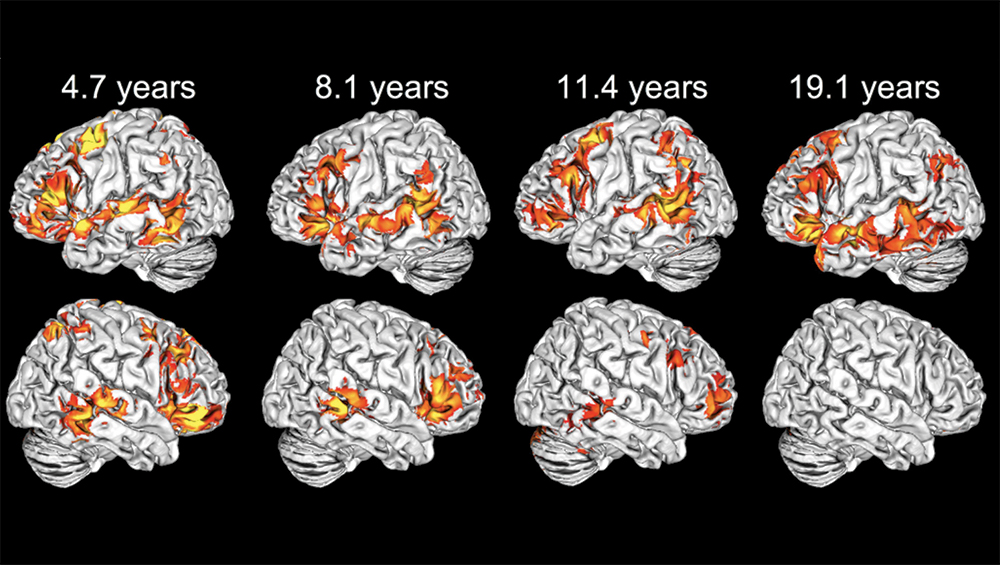 Composite image showing brain scans that display language processing activation at different ages in red